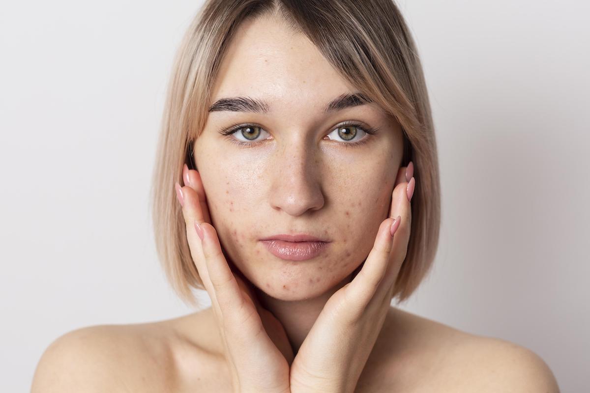 acne cause rimedi